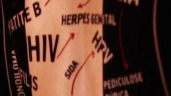 Infeções sexualmente transmissíveis