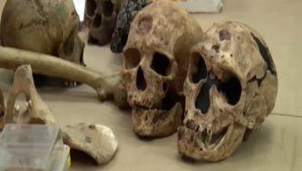 Antropologia Forense: quando os ossos contam histórias
