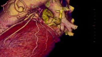 Tabagismo e doenças do coração
